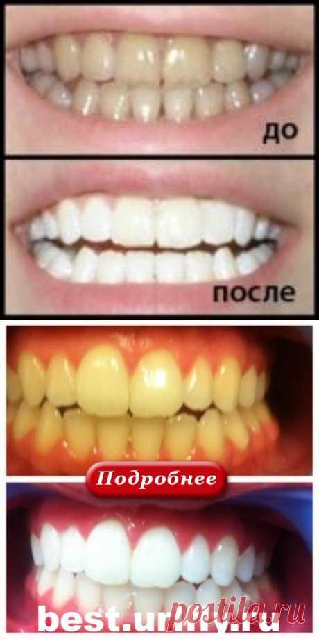 4 простых средства отбелят Ваши зубы за 5 минут! Эффект невероятный! - klassno