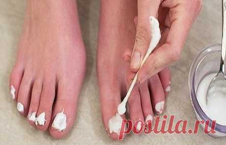 Нанесите это средство на ногти, и через 15 минут о грибке можно будет забыть!     Средство из 3 компонентов избавит от такой ужасной проблемы, как грибок ногтей. Все знают, что это заболевание сопровождается неприятным запахом, исходящим от ног.     Также чешется и зудит кожа, может даже облезать, разрушается ногтевая пластина… Но, применяя это средство от грибка на ногах 2 раза в день, вы полностью вылечите заболевание даже без аптечных препаратов!     средство против гри...