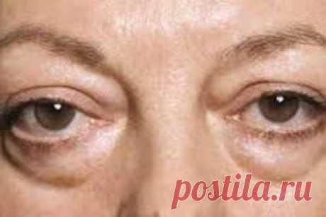 Причины, симптомы, как убрать отеки под глазами? Содержание: Почему отекают глаза? Какие ещё могут быть причины отёка под глазами? Как убрать отеки под глазами? Профилактика возникновения отёков под глазами. Накопление избыточного количества жидкости в тканях организма приводит к такому неприятному и неэстетичному явлению, как отёки. Они могут появляться в различных областях и частях человеческого организма: на лице, верхних или нижних конечностях, туловище, внутренних орг...
