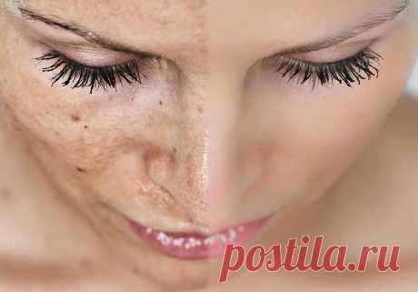 10 средств для кожи, которые стирают пигментные пятна как ластик   Основными причинами возникновения пигментных пятен могут быть воздействие ультрафиолетового излучения, возрастные изменения, хронические заболевания печени и почек, последствия акне, беременность, з…