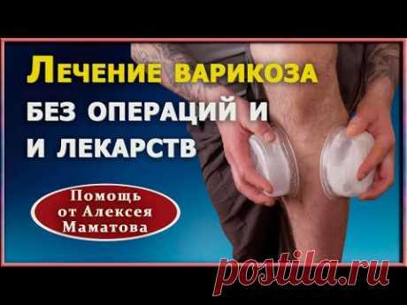 Как убрать варикоз без операций.  Эффективные приемы лечения варикозного расширения вен А. Маматов