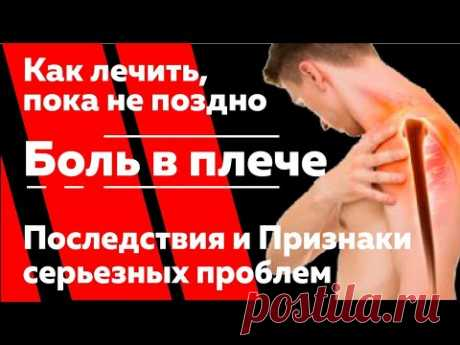 Боль в плече. Как лечить, пока не поздно. Признаки серьезных проблем и необратимые последствия.