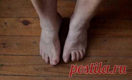 Китайское упражнение, которое останавливает старение ног. По 3 минуты в день | Центр здоровья | Яндекс Дзен