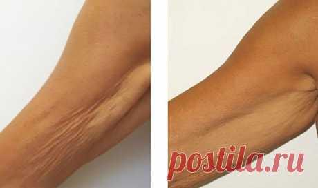Морщинистая шея, дряблые руки и рыхлые бедра в прошлом! Это средство огорчит пластических хирургов. - Советы и Рецепты Потерявшая упругость, обвисшая кожа на руках, шее, животе и бедрах — нередкое явление у женщин после 45 лет. Увлечение диетами, резкое похудение, гормональные сбои — всё это сказывается на состоянии кожи, ведь с возрастом клетки уже не способны так быстро восстанавливаться, как прежде. Тем не менее существует средство, которое при условии регулярного приме...