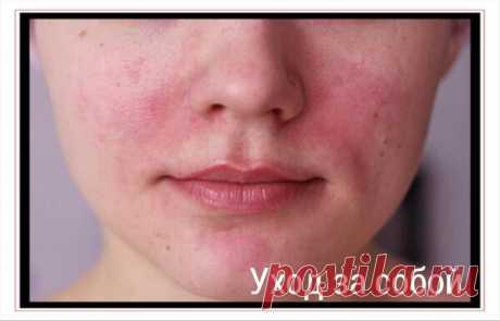 Как устранить покраснения и сухость кожи после обветривания? 3 эффективные маски от женщин нашей семьи | Уход за собой | Яндекс Дзен