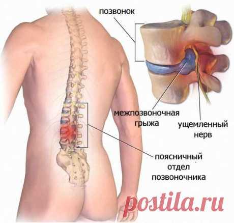 Лечение межпозвоночной грыжи без лекарств и операции: упражнения для спины от Шамиля Аляутдинова. | В темпі життя