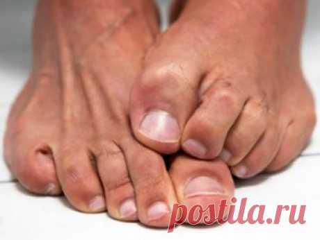 Как распознать грибок ногтей на руках и ногах? Азбука здоровья - Азбука веры Считается, что грибок ногтей — это вторичная инфекция. ... ступней ног, иммунодефицитные состояния и сахарный диабет. ... Оно чаще всего выглядит как белые полоски, идущие от свободного края ногтя вниз.
