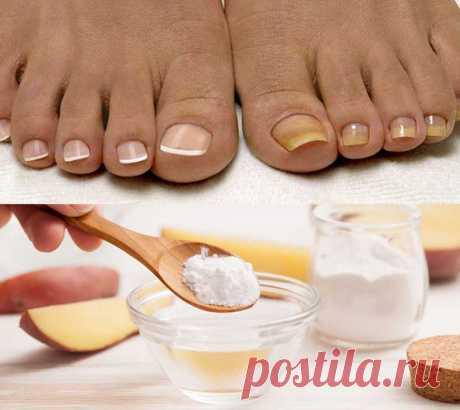 Грибок ногтей сода внутрь Грибок ВЫЛЕЧИЛА САМА! Без врачей! которая есть в каждой кухне. Лечение грибка ногтей .