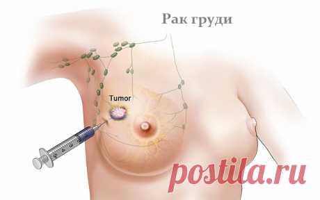 Лучшие суперпродукты, которые помогают бороться с раком молочной железы!      Женщины, не игнорируйте!   Всемирная организация здравоохранения предсказала, что к 2020 году заболеваемость случаями рака молочной железы будет выше, чем сегодня. Считается, что риск развития ра…