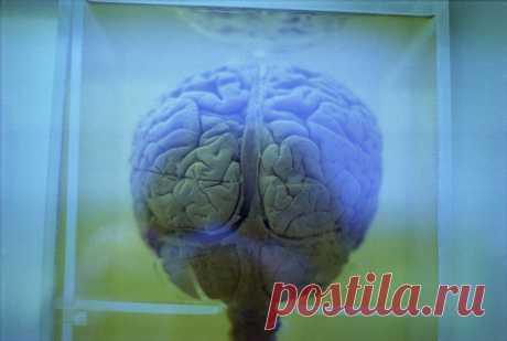 Леди Красота | Бывает ли опухоль головного мозга без симптомов? Нужно быть очень внимательным к своему здоровью, чтобы вовремя распознать опухоль мозга. Раком головного мозга страдает примерно 1% населения планеты. Как правило, опухоль развивается «тихо» —…