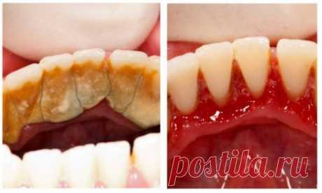 1 КЛАССНЫЙ СПОСОБ ИЗБАВИТЬСЯ ОТ ЗУБНОГО КАМНЯ САМОМУ И ДОМА Мы все ненавидим зубной камень. И все ненавидим бывать у стоматолога. Вот вам простой рецепт, который поможет сохранить зубы и легко справиться с такой проблемой, как зубной камень. Если не следить за эмалью и вовремя не удалять зубной налет, может развиться воспалительное заболевание — периодонтит. При периодонтите инфекция проникает через корневой канал в зуб, воспаляется […]