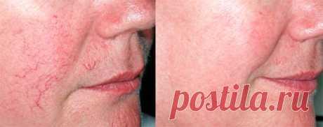 Сосудистые звездочки на лице, причины появления, лечение| Красота от Здоровья