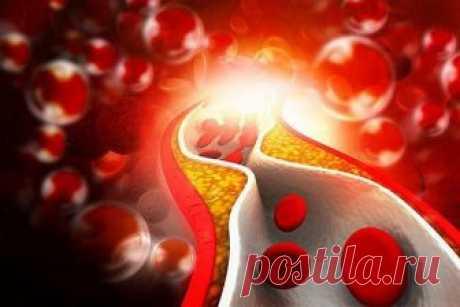 Как снизить уровень сахара в крови в домашних условиях? - Полезные советы