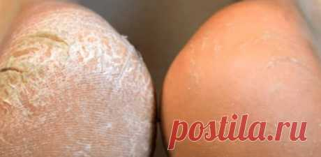 Крем от натоптышей, мозолей и трещин на пятках ног. Рецепт. | Косметика Craft Cosmetics | Яндекс Дзен