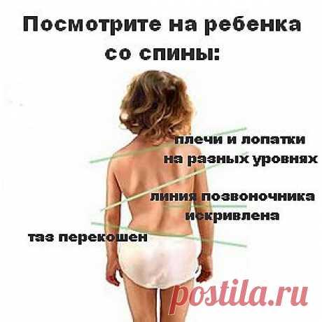 Профилактика нарушений осанки у детей | Авва Красивая, правильная осанка у ребенка – это мечта каждой мамы, показатель здоровья, уверенности, воспитанности.  Хорошая осанка в положении стоя означает, что плечи ребенка слегка отведены назад, грудная клетка расправлена, туловище выпрямлено. Когда ребенок сидит, спина также должна быть прямой, а голова – высоко поднятой. Правильная осанка чрезвычайно важна, особенно в период роста и формирования скелета