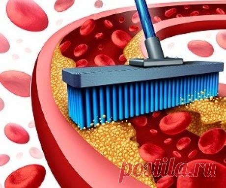 Чистим артерии естественным путем