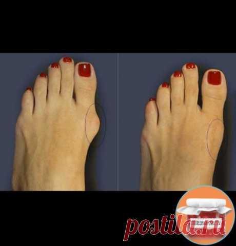 КАК ИЗБАВИТЬСЯ ОТ КОСТОЧКИ НА НОГЕ 5 СПОСОБОВ  Косточки на ногах — это причина страданий многих женщин. Боль при ходьбе, дискомфорт при ношении обуви, некрасивый внешний вид, деформация пальцев — неприятные спутники растущей шишки.  Причин косточки на большом пальце (вальгусной деформации пальца стопы) целый ряд: слишком тесная обувь, неправильное питание, наследственность, плоскостопие, ревматизм.  Как правило, для избавления от шишки на ноге ортопеды назначают корректирующие накладки, которы