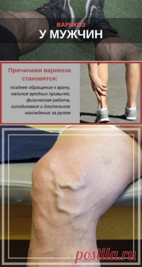 Варикоз у мужчин на ногах: как лечить, симптомы - Flebolog24