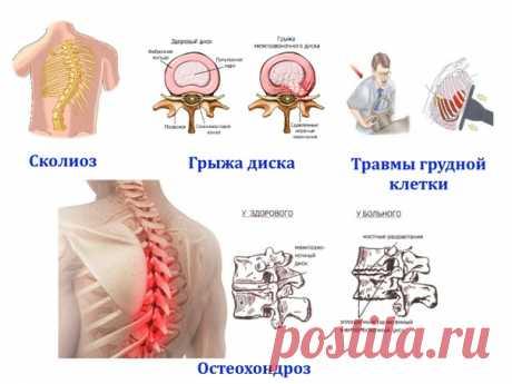 Почему болит в спине и отдает в грудь или живот? Основные причины: