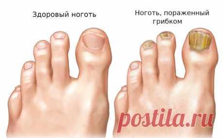 Грибок ногтя и стопы. Грибок любит темные и сырые места, поэтому ваши ноги особенно уязвимы для грибковой инфекции. Грибок ногтя на пальце ноги и грибок стопы очень распространены, и оба они могут быть вызваны одним и тем же организмом. Тем не менее, они не одинаковы, и к ним относятся по-разному.. → LIFETY.RU ←