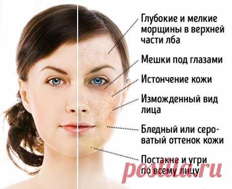 4 продукта, которые меняют лицо до неузнаваемости                              Сахарное лицоКроме способствования набору лишнего веса сахар также влияет на состояние кожи. Он усиливает гликацию — процесс, при котором излишки молекул глюкозы прикрепля…