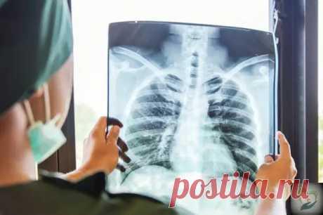 (46) Восстановление легких при пневмонии. Рекомендации фтизиатра - ПолонСил.ру - социальная сеть здоровья - медиаплатформа МирТесен Видео для пациентов и специалистов-пульмонологов, врачей общей практики, а также всех интересующихся вопросами лечения и восстановления органов дыхания.