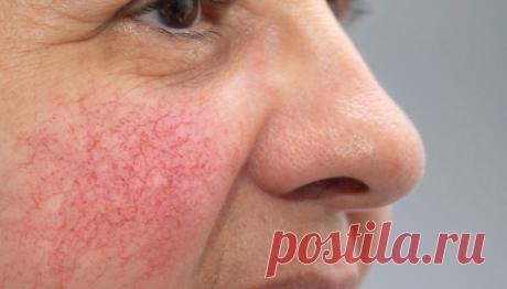 Как избавиться от сосудистой сетки на лице / Будьте здоровы
