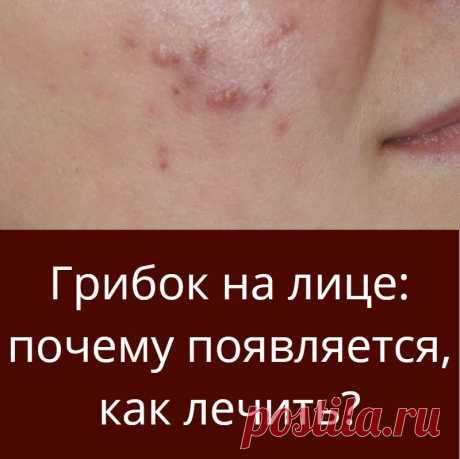 Грибок на лице: почему появляется, как лечить?