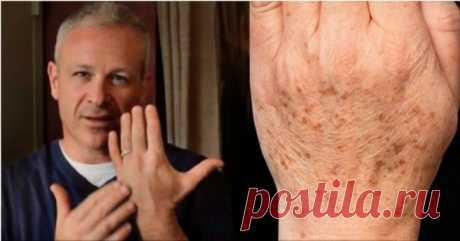 Американский доктор рекомендует: простой способ быстро устранить пигментные пятна на коже. Всего 2 ингредиента! Доктор Дуг Вилэн обнаружил естественное и действительно мощное решение, которое помогает быстро избавиться от пигментных пятен!  Пигментные пятна появляются на руках, декольте, лице и плечах. Не думайте, что такая проблема возникает только в пожилом возрасте. Молодые люди также уязвимы, особенно п