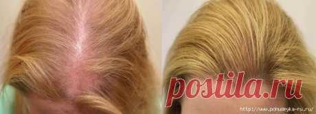 Три полезных процедуры для сильно редеющих волос!