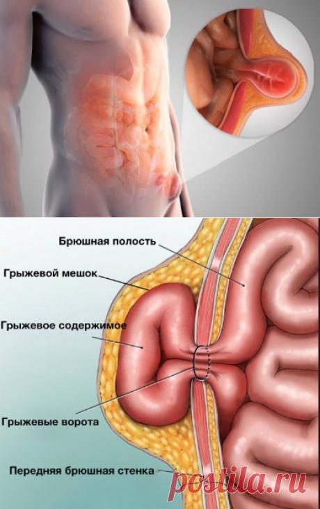 Почему появляются грыжи и чем они опасны?   Кладовая здоровья   Яндекс Дзен