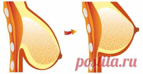 4 естественных способа, которые предотвратят провисание груди - Советы на каждый день
