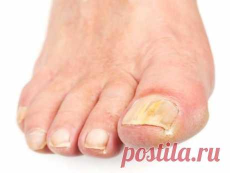 Грибок ногтей какой вред наносит организму  Грибковые заболевания ногтей, методы лечения грибка ногтей.  Грибковые заболевания ногтей и стоп являются достаточно неприятным ... Грибок опасен тем, что он своим микробным воздействием наносит вред ..
