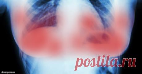 სიმსივნის განკურნება 11 დღეშია შესაძლებელი - მხოლოდ 2 წამალი დაგჭირდებათ - რეიტინგი