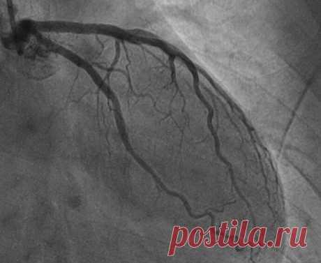 Что такое инфаркт и почему он миокарда? | Советы израильского кардиолога | Яндекс Дзен