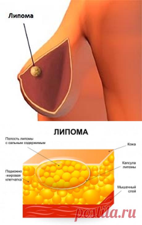 Липома молочной железы: что это такое и как лечится?