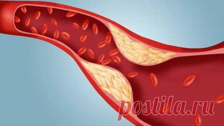 «Статины для снижения холестерина последнего поколения, названия препаратов  На сегодняшний день статины являются лучшим средством в борьбе с повышенным холестерином. Какие статины последнего поколения существуют читайте в статье.