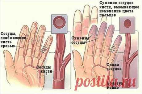 Народные средства против онемения рук и ног: как вылечиться и быть здоровым! Просто, но действенно