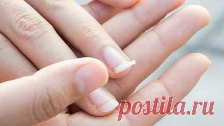 10 способов борьбы с ломкостью ногтей | СЕКРЕТЫ КРАСОТЫ | Яндекс Дзен