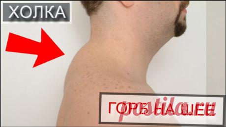 Убрать горб на шее. Убрать горб на шее — достаточно трудная задача, поэтому лучше с этим заболеванием вовсе не сталкиваться. Избежать появления такого неприятного
