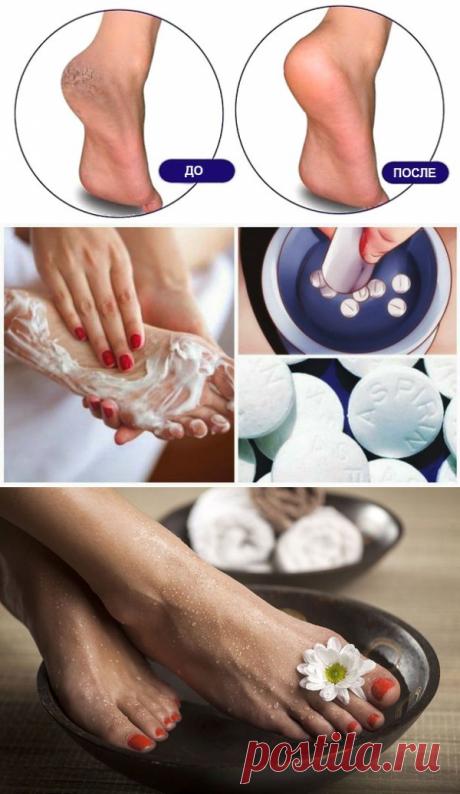 Аспириновый пилинг для ног - гладкие пяточки как после салона