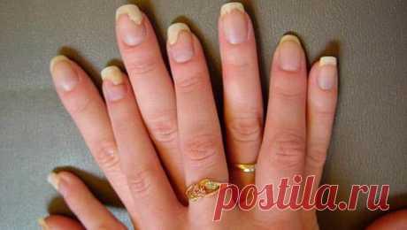 Грибок ногтей симптомы на руках  Стадии на фото, средства для лечения Таким образом грибок ногтей на руках можно 'подцепить' в местах, где ... СИМПТОМЫ ЗАРАЖЕНИЯ НОГТЕЙ НА РУКАХ ГРИБКОМ: