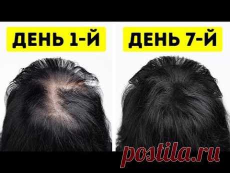 Как отрастить густые волосы? Неважно, парень вы или девушка, об одном, я думаю, мечтают абсолютно все: иметь роскошные густые волосы. Но не все готовы пойти ...