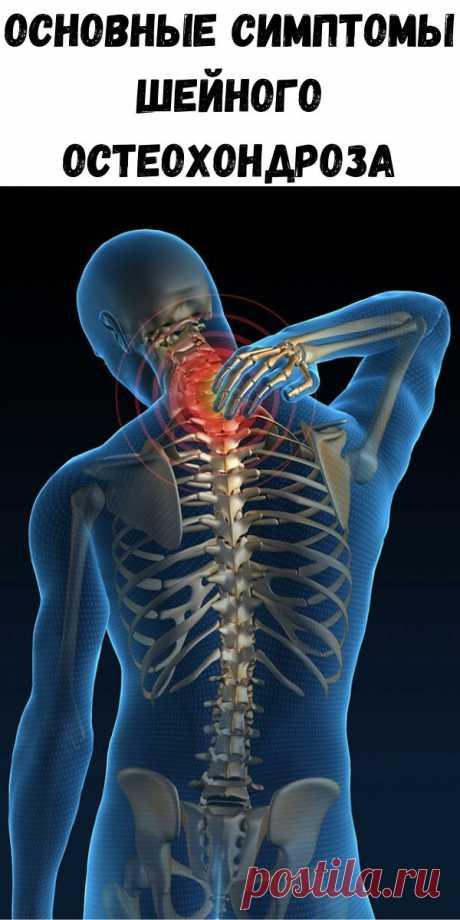 Основные симптомы шейного остеохондроза - Счастливые заметки