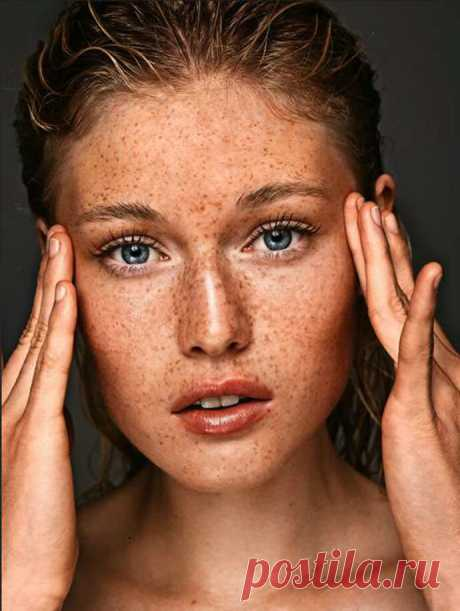 Как убрать с лица пигментные пятна | Женский Гид
