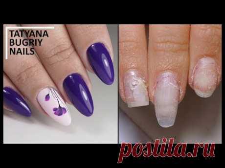 Work on MISTAKES \/ Terrible OTSLOYKI\/Wrong architecture \/ Correction of Naroshchenny Nails