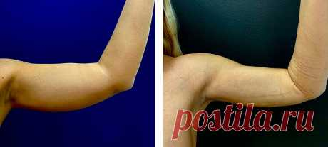 Простое китайское упражнение, которое подтягивает кожу на руках за 2 недели. Уделяя 3 минуты в день | Стройная | Яндекс Дзен