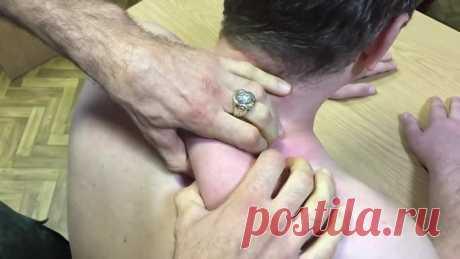 Лечение шейного остеохондроза без таблеток! Как убрать головную боль за 5 м