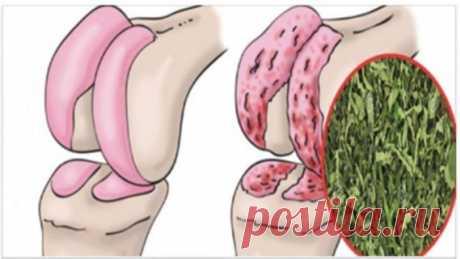 Ефективний засіб для відновлення хрящів колін, суглобів і зміцнення кісток! Неважливо, скільки вам років, така проблема завжди нестерпна.Ті, кому потрібно багато рухатися протягом дня, страждають більше, як у випадку з атлетами, які переносять велику вагу.Біль може бути настільки інтенсивною, що необхідно терпіти навіть кілька миттєвостей.  Коліна підтримують повну вагу