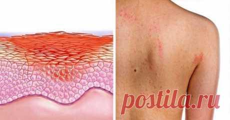 Ваша кожа расскажет вам про серьезные внутренние болезни